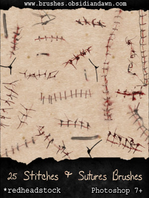 stitches staples suture medical accident skin